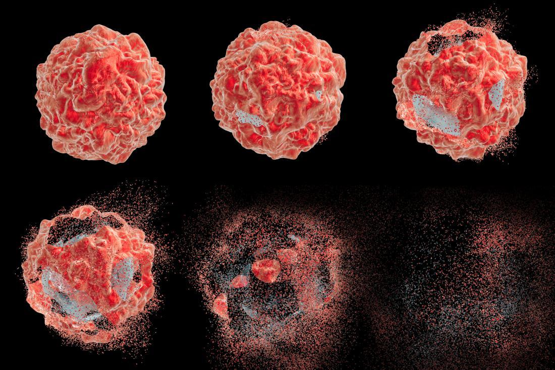 New Prostate Cancer Imaging Tracer Improves Detection
