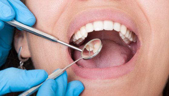 When It Comes to Children Choose Pediatric Dentist
